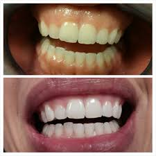 Dentist That Do Teeth Whitening Here You Can Learn What Should You Know Before Take Laser Teeth