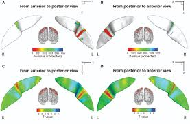 frontiers abnormal surface morphology of the central sulcus in