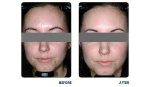 what is light therapy acne sarasota blue light therapy university park dermatology