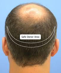 how thick is 1000 hair graft are you considering a hair transplant