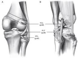 Knee Compartments Anatomy Posterolateral Corner Injury Sports Orthobullets Com