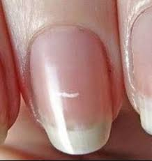 white spots on nails fingernails toenails marks dots causes