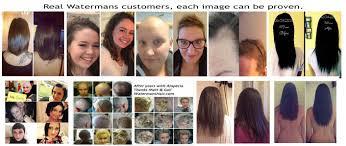 What Can I Do For My Hair Loss Best Hair Growth Shampoo Sulfate Free Caffeine Biotin Argan Oil