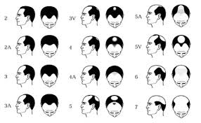 hair transplant calculator how much money does a hair transplant cost quora