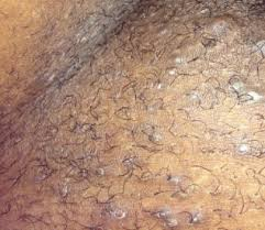 pubic hairs pics ingrown pubic hair cyst infected get rid of it treatment and