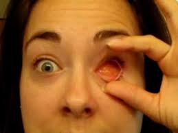 Artificial Eye For Blind June 08 Removing And Replacing My Prosthetic Eye Youtube