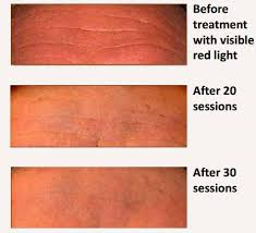 beauty angel red light therapy the beauty angel project impressive results from a man in