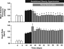 obesity induced hypertension circulation research