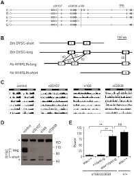 Is Night Blindness Hereditary Dyschronic A Drosophila Homolog Of A Deaf Blindness Gene