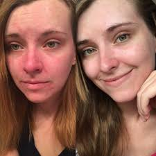 Red Flaky Skin Around Nose And Eyebrows B U0026a What 6 Months Sca Advice Did To My Dry Flaky And Bright Red