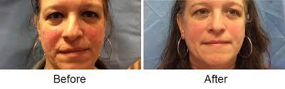 light treatment for skin ipl light treatment before after photos lisa bunin md