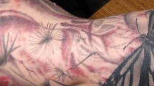 tattoo bacterial infection treatment fda warns that tattoo inks are causing skin infections