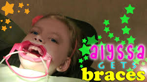alyssa braces