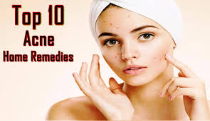 Face Mapping Acne Top 10 Home Remedies For Acne Get Rid Of Acne Scars Pimple