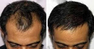hair burst complaints biotin for hair growth loss how much does it work reviews