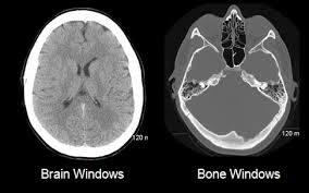 Axial Mri Brain Anatomy The Basics Neuroradiology