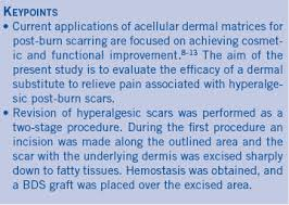 bilayer dermal matrix for the treatment of painful burn scars wounds