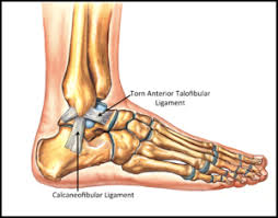 Anterior Tibiofibular Ligament Injury Sprained Ankle Ankle Sprain Footeducation