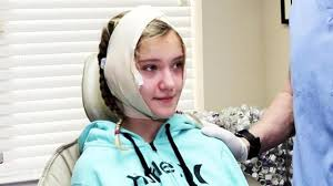11 year old girl 11 year old girl tears up after having plastic surgery to fix