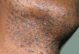 it looks like a simple ingrown hair within his chest ingrown hair scar bump deep won t heal on stomach pubic area