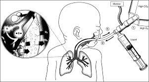 liquid ventilation current status neoreviews pediatrics in review
