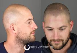 pics of scalp micropigmentation on people with long hair scalp micropigmentation beauty care nederland the netherlands