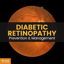 Diabetic Blindness Diabetic Retinopathy Prevention U0026 Management 12 Natural Tips Dr