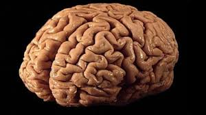 Sheep Brain Anatomy Game The Brain Market How To Acquire Brains Both Legally And Illegally