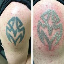 tattoo removal laser luxury