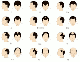 Can Wearing Hats Cause Hair Loss Korea Hair Transplant Center Hair Loss In Men And Treatment Methods