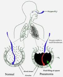 pulmonya wikiwand