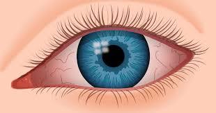 dry eye syndrome causes symptoms of chronic dry eye