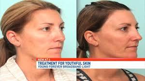 light treatment for skin broadband light treatment at lebeau clinic in pensacola fl youtube