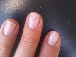 photo ongles gel ongles en gel uv