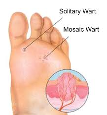 How Do You Get Rid Of A Planters Wart by Warts Essential Oils Pedia
