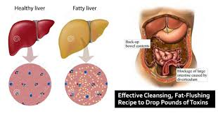 Human Anatomy Liver And Kidneys 48 Hour Weekend Liver Colon And Kidney Detox To Cleanse Toxins