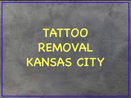 tattoo removal before u0026 after pictures rejuve med spa dallas