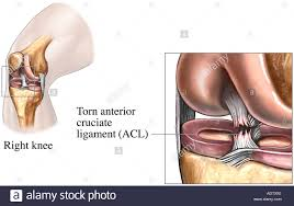 Ankle Anatomy Ligaments Knee Tear Of The Anterior Cruciate Ligament Torn Acl Stock Photo