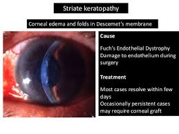 Blindness After Cataract Surgery Cataract Surgery Complications For General Practitioners
