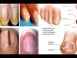 nail symptoms and what it means for your health youtube
