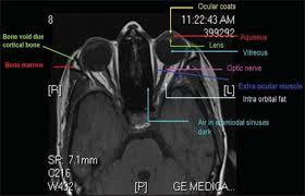 Axial Mri Brain Anatomy Interpretation Of Magnetic Resonance Imaging Of Orbit Simplified