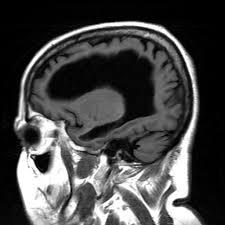 Sagittal Brain Mri Anatomy Mri Anatomy And Positioning Series