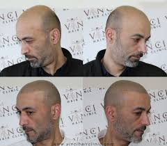pics of scalp micropigmentation on people with long hair best 25 scalp micropigmentation ideas on pinterest micro scalp