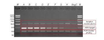 Serum Hpv plasma serum hpv high and low risk pcr detection kit