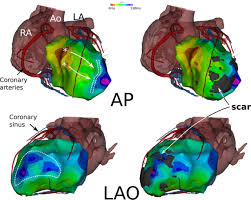 distinctive left ventricular activations associated with ecg