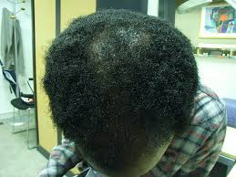 treatment for thinning black hair new hair style collections