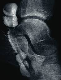 Ankle Ligament Tear Mri How To Diagnose Lateral Ankle Injuries Podiatry Today