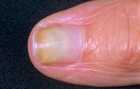 nail abnormalities a visual guide