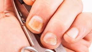 8 weird things your fingernails say about your health 1 white
