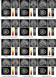 functional expansion of sensorimotor representation and structural